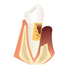 diente con periodoncia severa